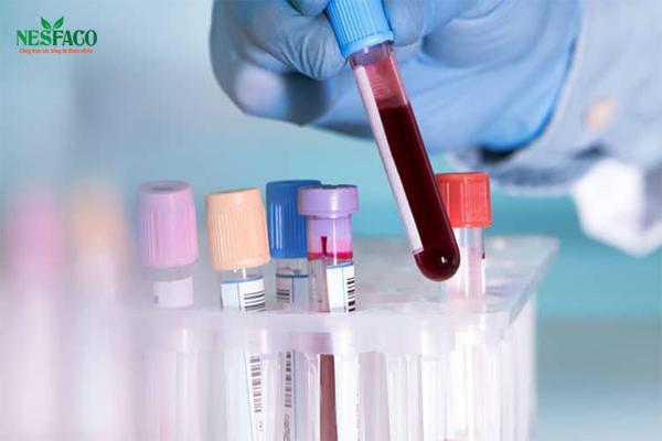 Xét nghiệm định kỳ để xác định nếu có cao huyết áp biến chứng thận